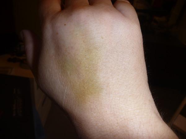 nice bruise, no?